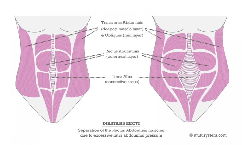 HOW TO TREAT DIASTASIS RECTI THE NATURAL WAY
